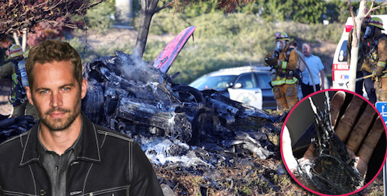 How Did Paul Walker Look After His Accident